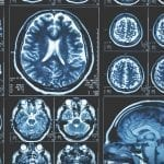 MRI Collection of brain scans: ID 113188023 © Ded Mityay | Dreamstime.com