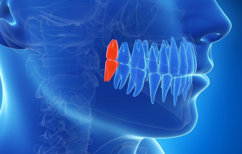 3D illustration of wisdom teeth: ID 30725958 © Sebastian Kaulitzki | Dreamstime.com