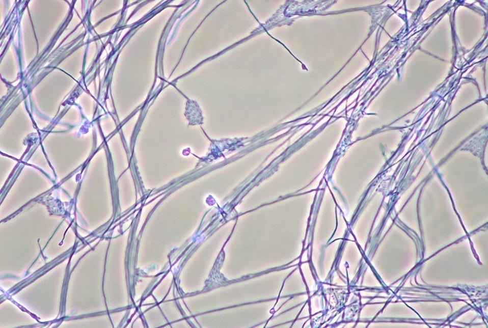 Photomicrograph of mycelia, conidiophores and conidia of the fungus Acremonium recifei. Photo credit: USA Public Health Images