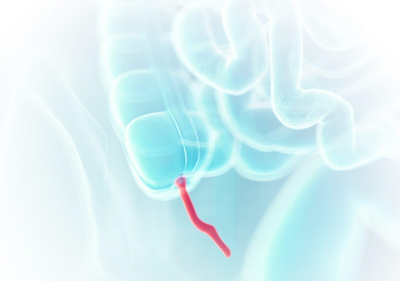 Human Appendix illustration: ID 127825575 © Sebastian Kaulitzki | Dreamstime.com